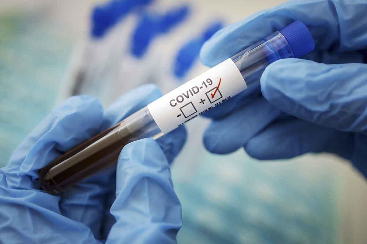 Armenia records 31 coronavirus related deaths over past day